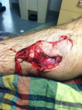An encounter with a wild hog left Louisiana hunter Chris Morris with this gaping wound on his lower leg.