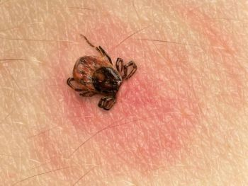 Don't let a tick ruin your summer activities afield. Learn how to prevent them from taking a bite out of you and what to do if one does.